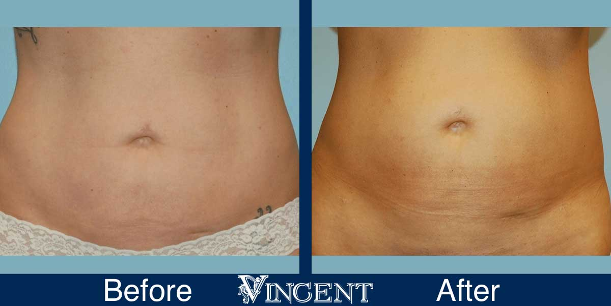 liposuction before and after utah
