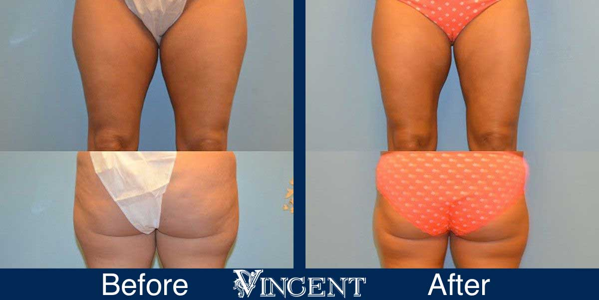 thigh liposuction before and after utah