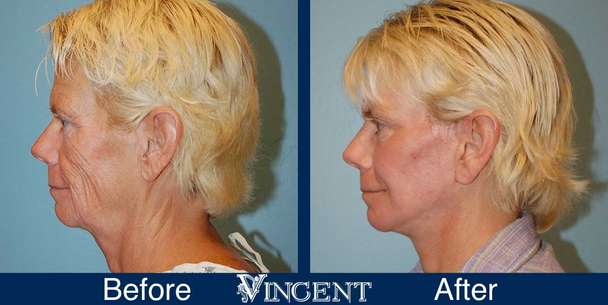 co2 laser treatment before and after utah