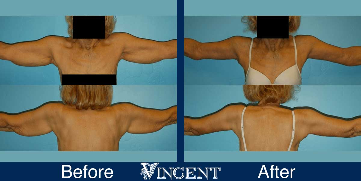 brachioplasty before and after utah armlift