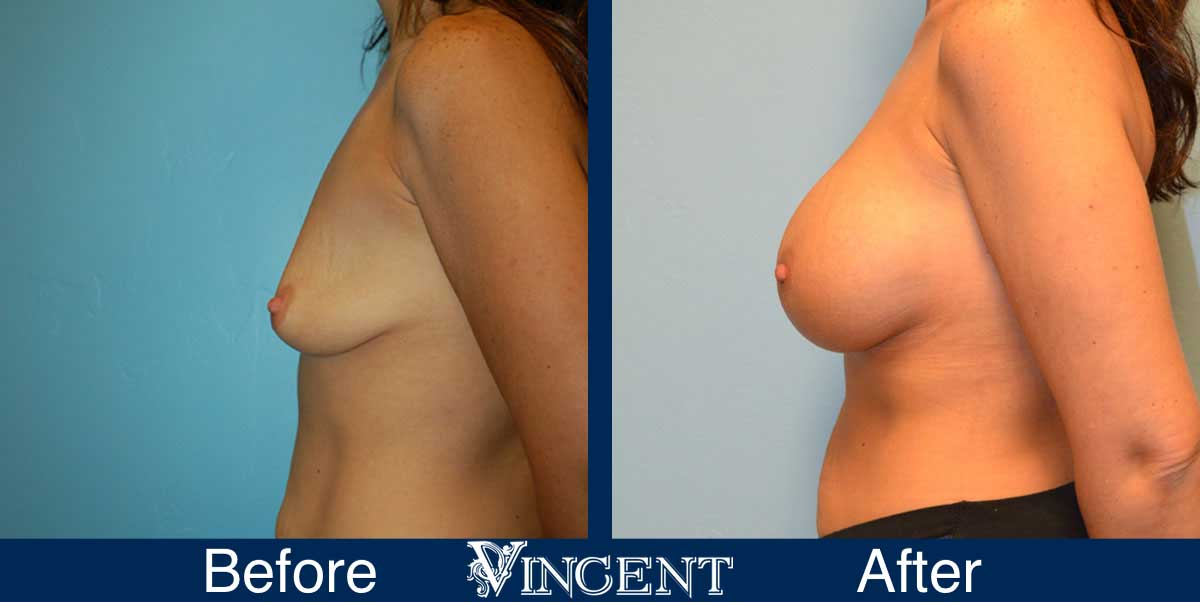 breast augmentation before and after utah