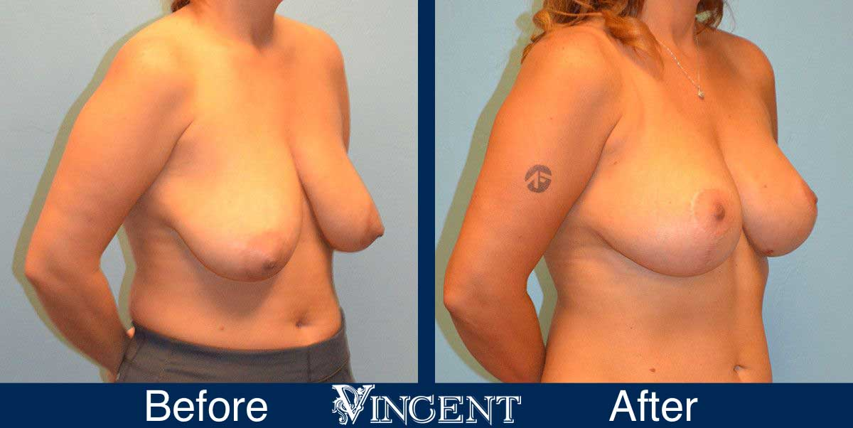 breast reduction before and after utah