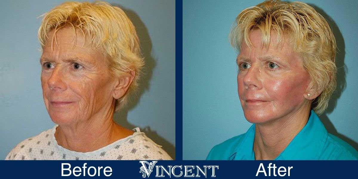 facial fat grafting before and after utah