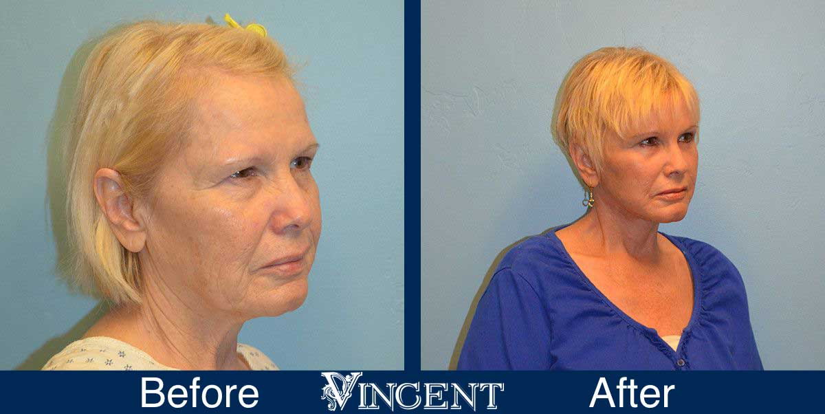forehead lift before and after utah