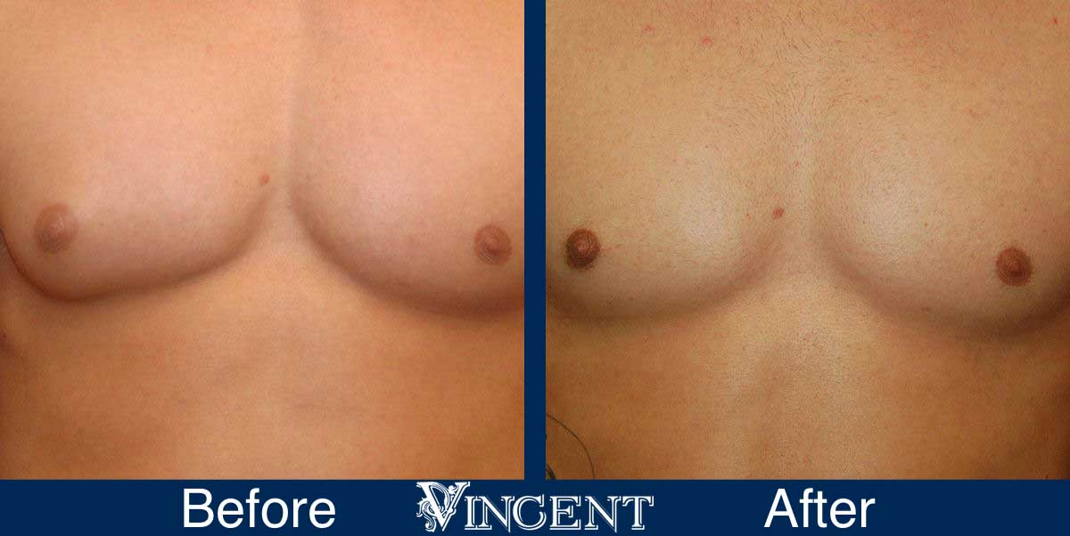 gynecomastia before after utah