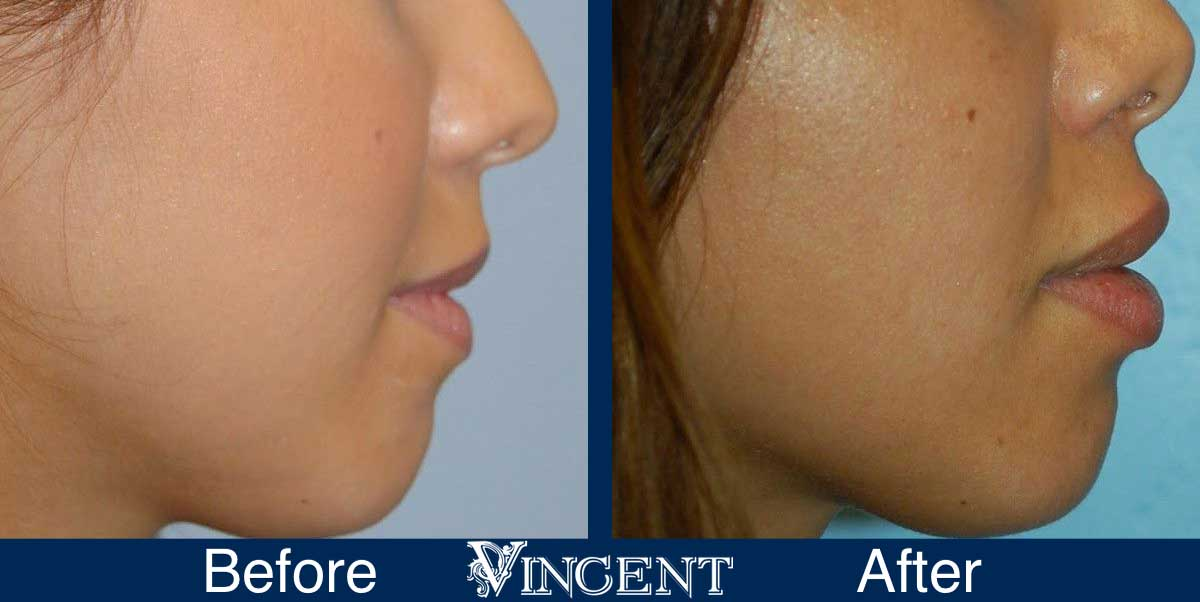 lip augmentation before and after utah