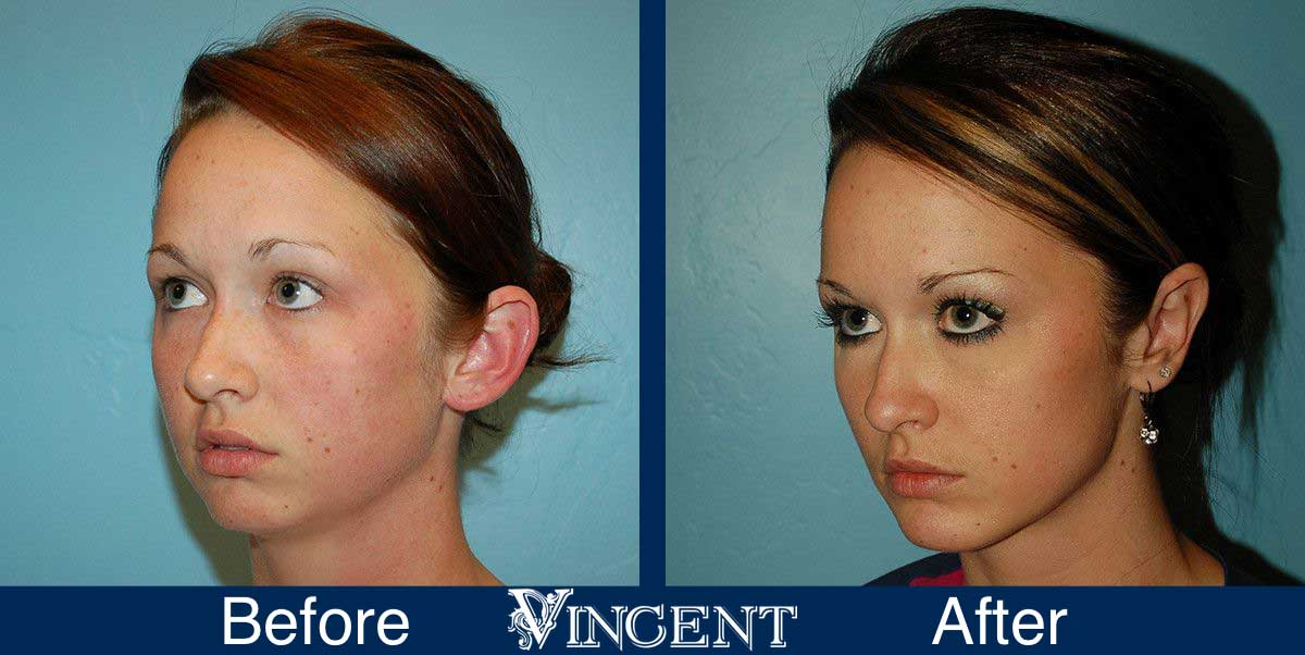 otoplasty before and after utah