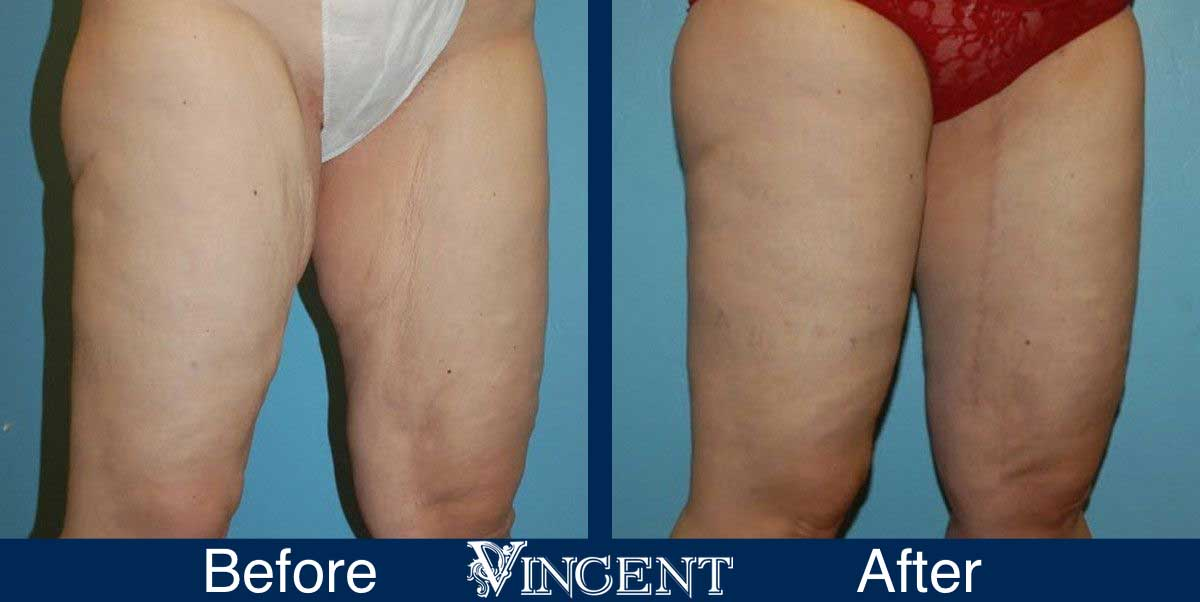 thigh lift before and after utah