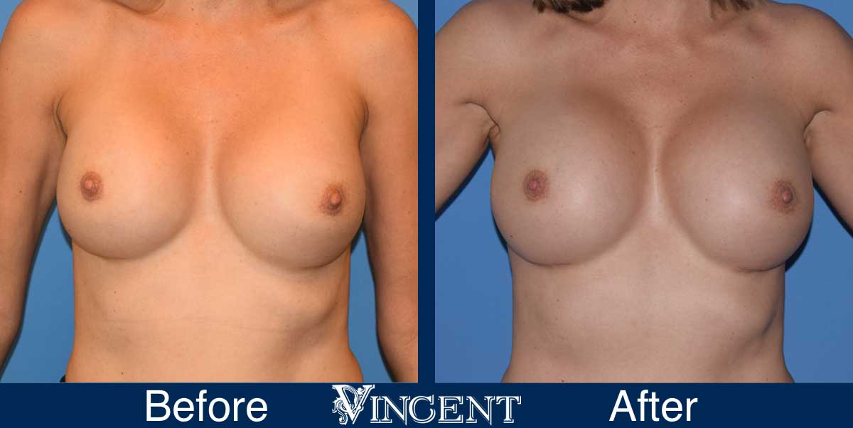 breast augmentation replacement before and after utah