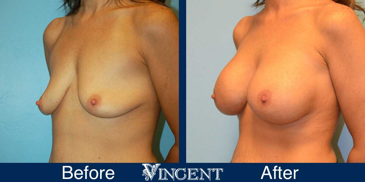 breast augmentation utah before and after