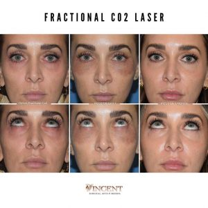 fractional co2 laser treatment before and after utah