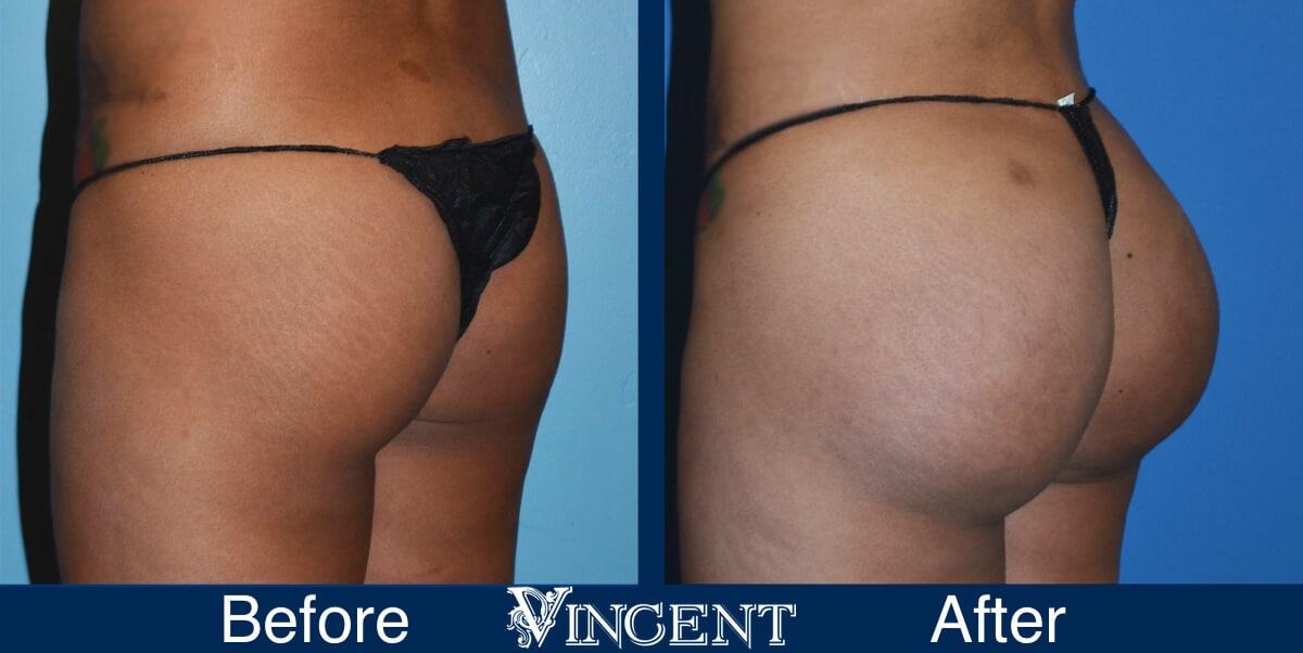 Brazilian Butt Lift Before and After Photos 2