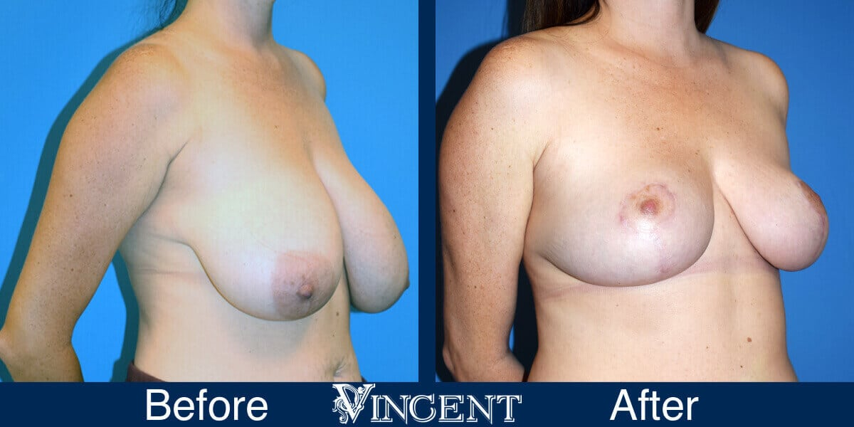 Breast Lift Before and After Photos 1