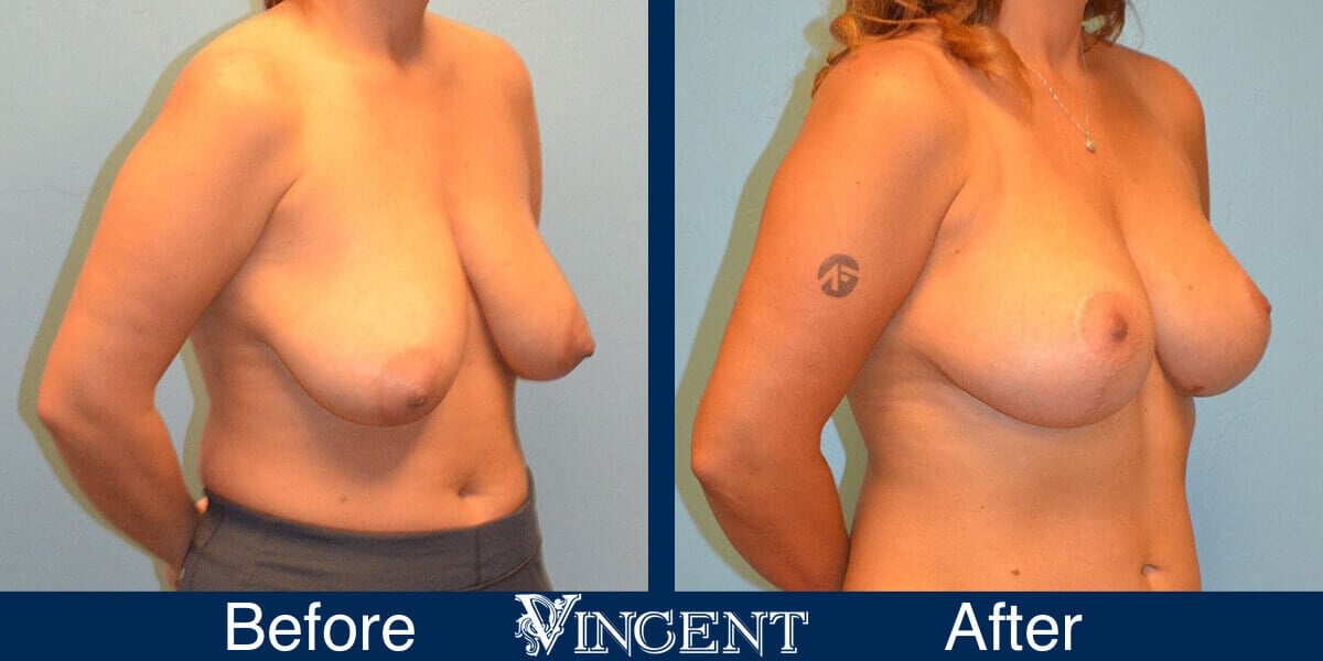 Breast Lift Before and After Photos 2