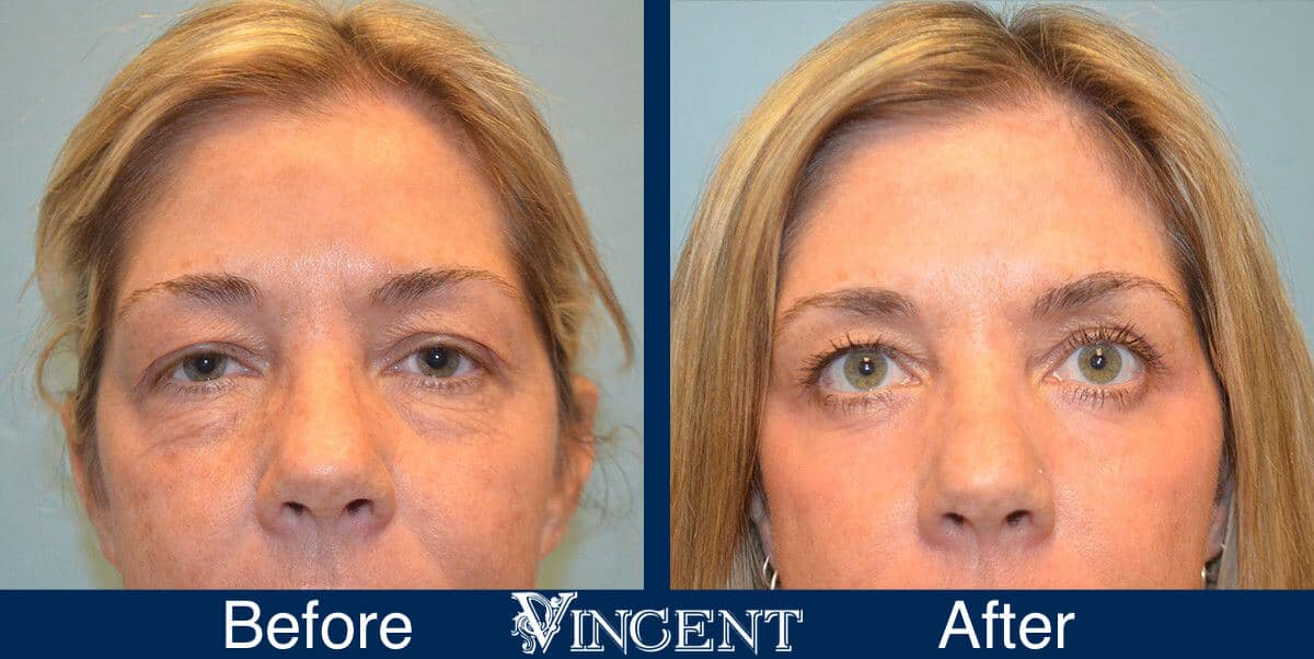 CO2 Laser Resurfacing Before and After Photos 2