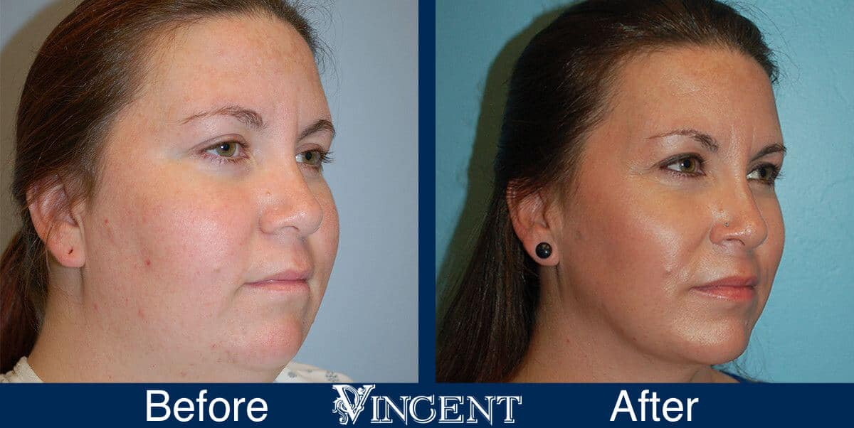 Chin Liposuction Before and After Photos 1