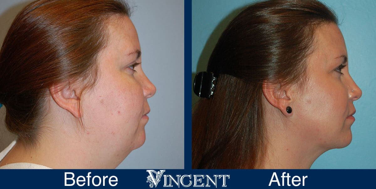 Chin Liposuction Before and After Photos 2