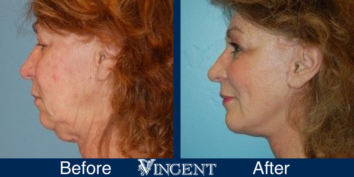 Facelift Before and After Photos 2