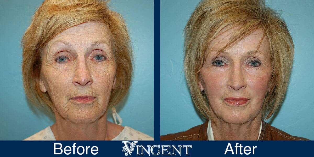Fat Transfer Face Lift offers an alternative approach for patients who want a more natural cosmetic procedure. Fat transfer surgery is performed on an out-patient basis with IV sedation and usually takes about one hour. Fat Transfer Face Lift Before and After Photos 1