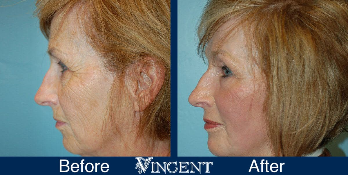 Fat Transfer Face Lift Before and After Photos 2