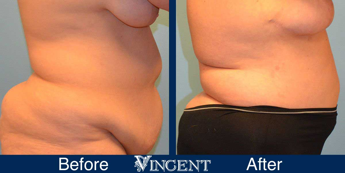Liposuction Cosmetic Surgery Before and After 1