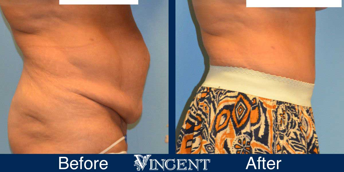 Liposuction Cosmetic Surgery Before and After 2