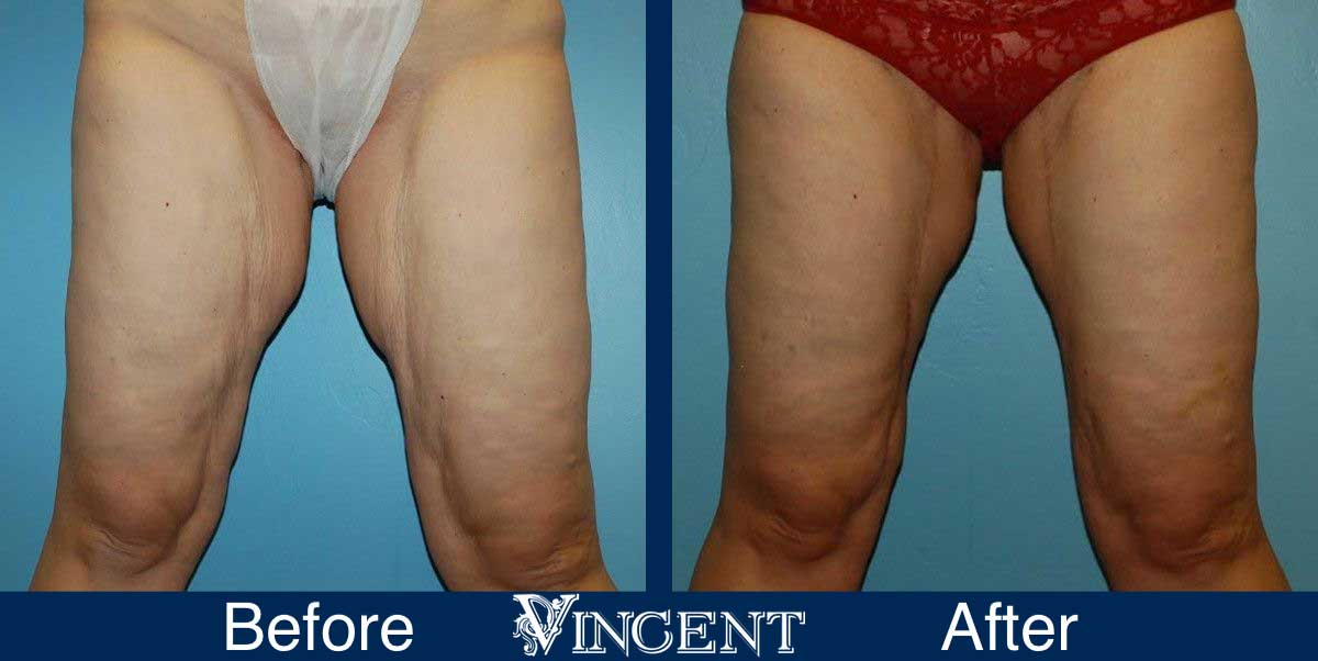 Thigh Lift Surgery Before and After Photos