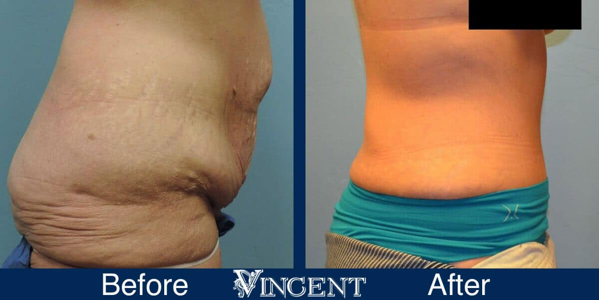 Tummy Tuck Before and After Photos 1