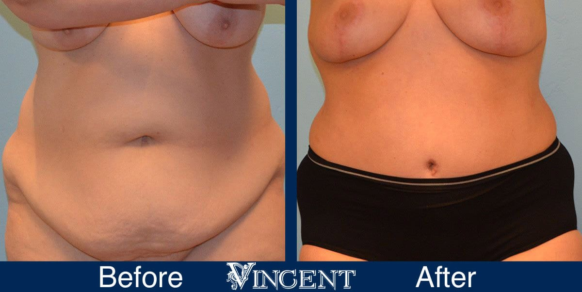 Tummy Tuck Before and After Photos 2