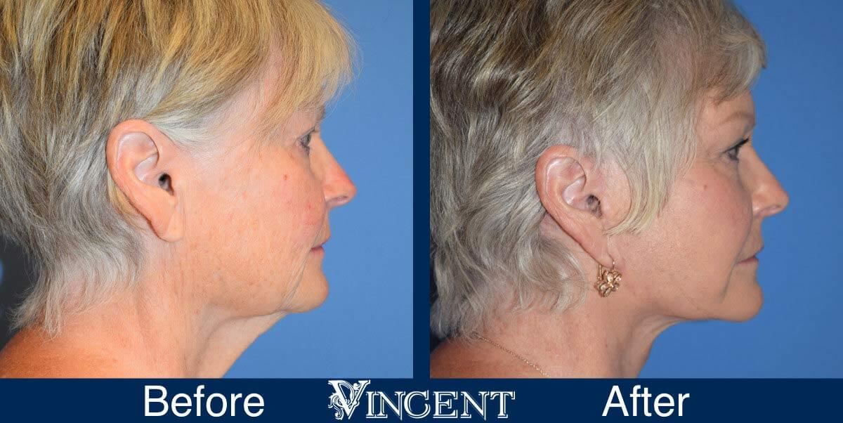 Vincent-Surgical-Arts-Facelift-Procedure-Before-and-After