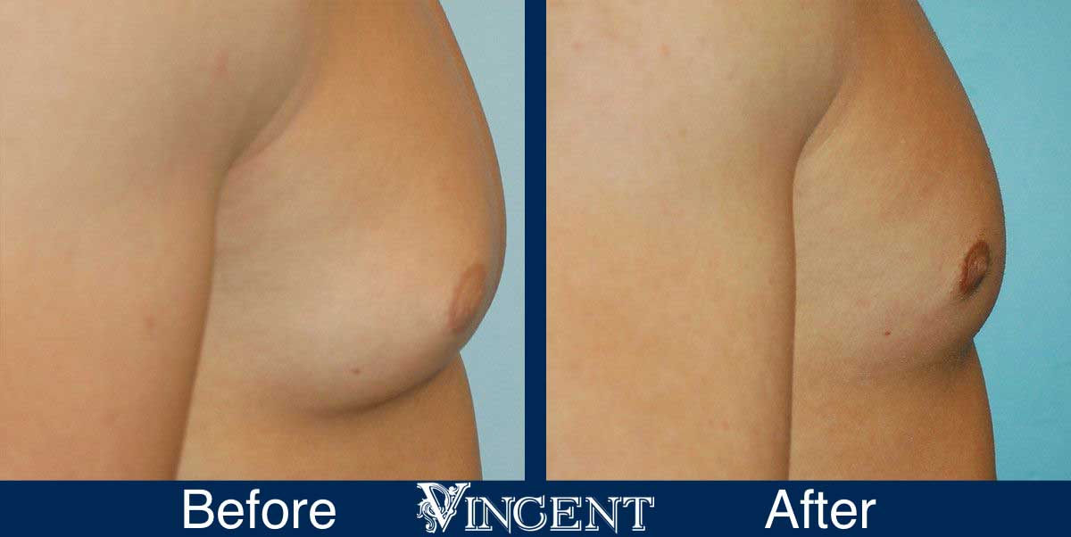 Vincent Surgical Arts: Male Breast Reduction Surgery Utah