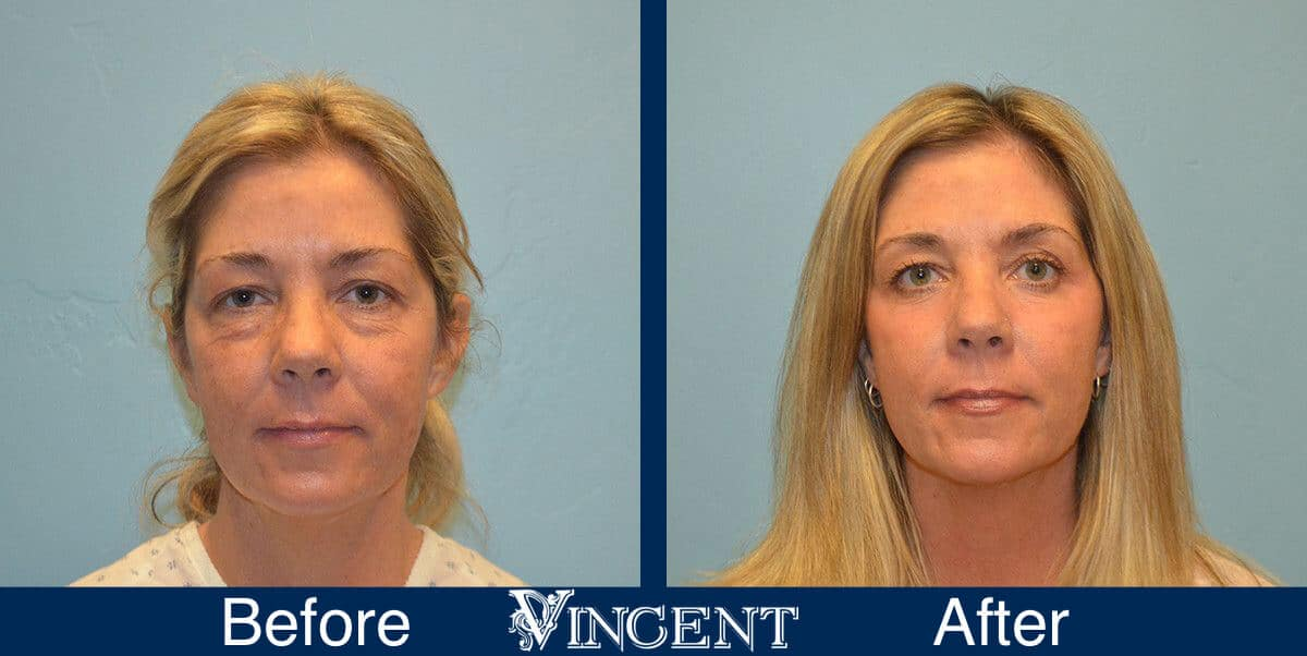 Laser Resurfacing Before and Afte